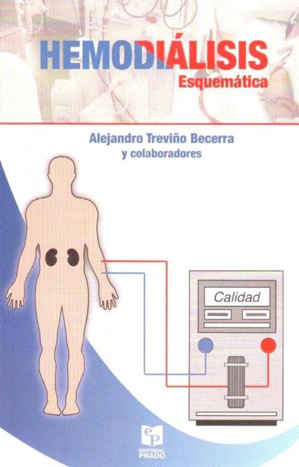 Hemodiálisis esquemática