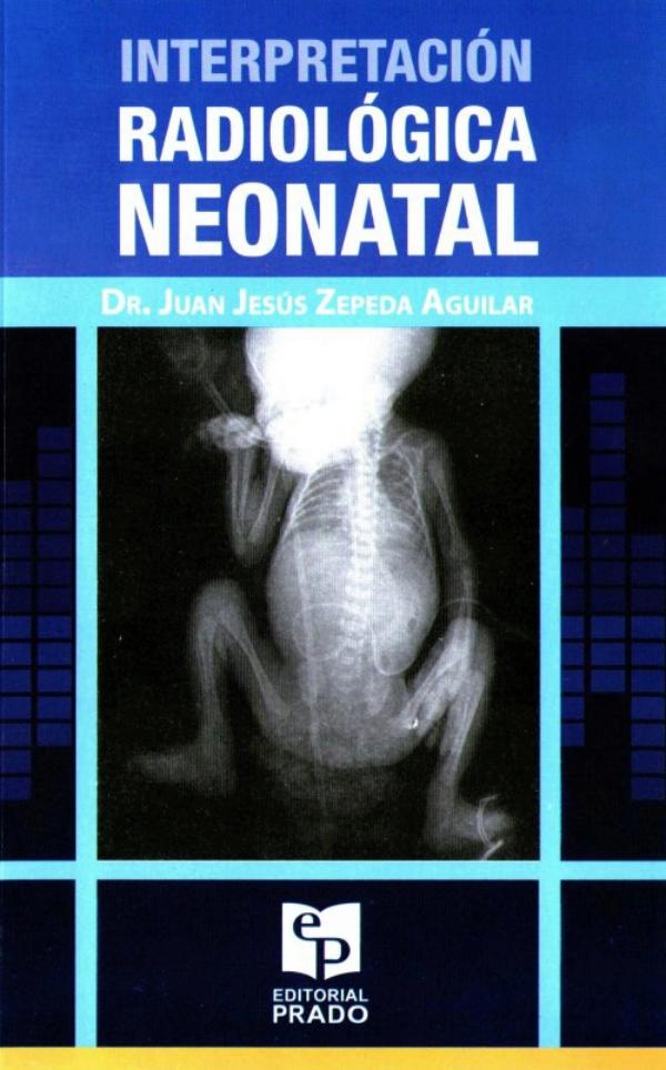 Interpretación radiológica neonatal